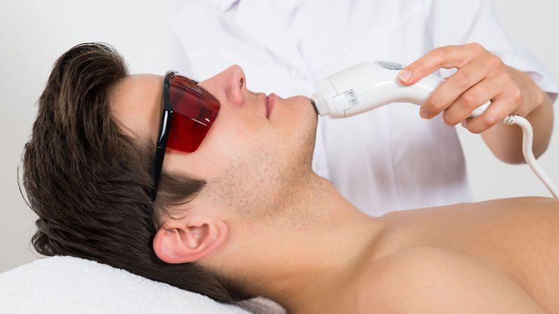 همه آنچه که درمورد لیزر موهای زائد باید بدانید